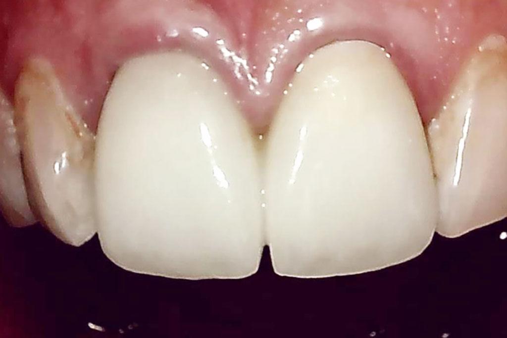 前歯が虫歯になった!保険治療と自費治療?仕上がりはどうなる ...
