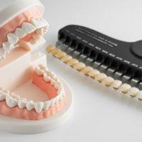 キラッと光る銀歯をなくしたい!自費治療のすすめ