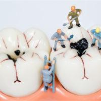 後悔先に立たず!虫歯になったら早期発見早期治療!手遅れになったら他の歯にも影響が!