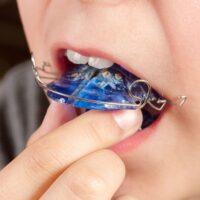子供の歯並びのためにできること。指しゃぶりは?食事方法は?矯正は早めがいい?