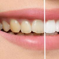 気になる歯の着色。原因と対策を理解して白い歯を手に入れよう!